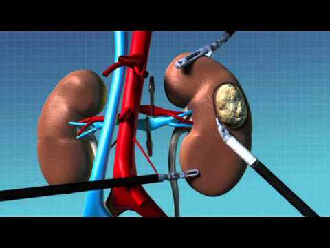 Robotic Partial Nephrectomy Animation
