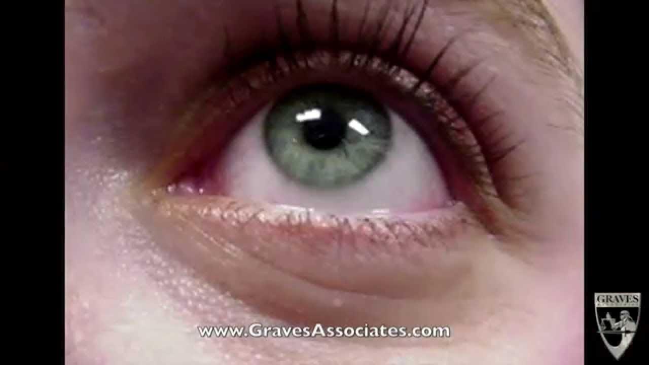 horizontal and vertical gaze nystagmus - youtube, Skeleton