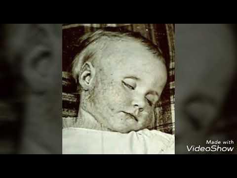 Post Mortem part 2 - Babies