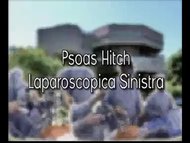 Laparoscopic surgery - Psoas Hitch laparoscopica sinistra
