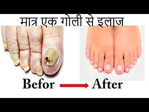 Medicine For Nail Fungus (in hindi) 100% Working