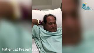 Reverse Stroke – Successful management of stroke at Apollo Hospitals