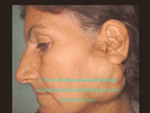 pleomorf adenoma Tabletták a prostatitisből f