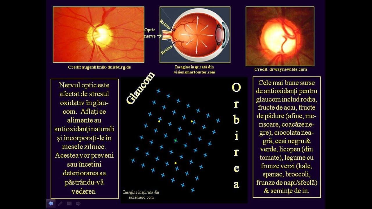 pierdere a vederii după glaucom