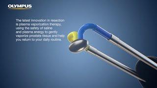Plasma Vaporization Patient Education Video
