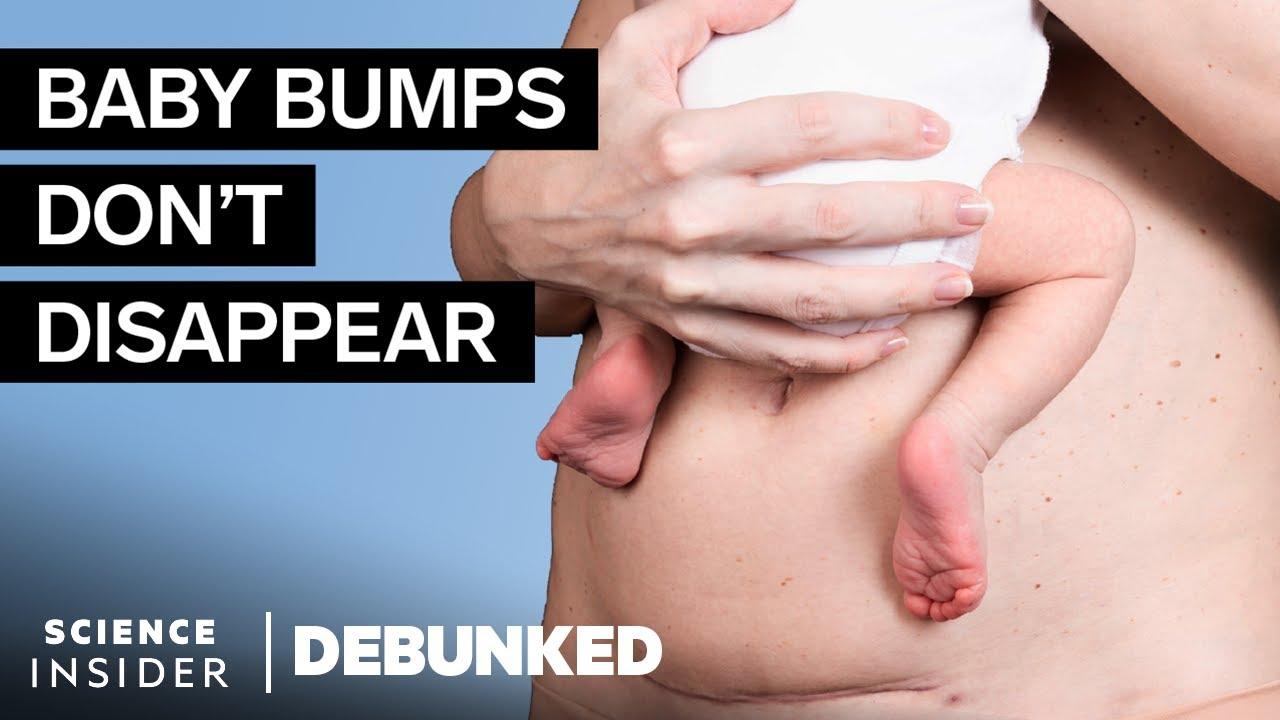 OB-GYNs Debunk 16 Postpartum And Breastfeeding Myths   Debunked