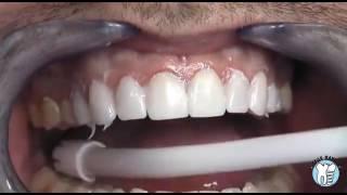 Porselen Diş Kaplama Nedir ve Nasıl Yapılır