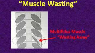 muscle atrophy wasting pain