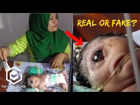 One Eye Cyclops Baby - Baby Born With One Eye In Indonesia