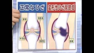 膝の痛みにご用心  北千葉整形外科  金山竜沢先生】