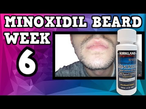 Minoxidil Beard | Week 6 | The Experiment |  #FacialFuzzFridays