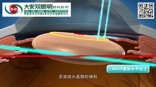 飛秒雷射白內障手術說明影片-LensAR