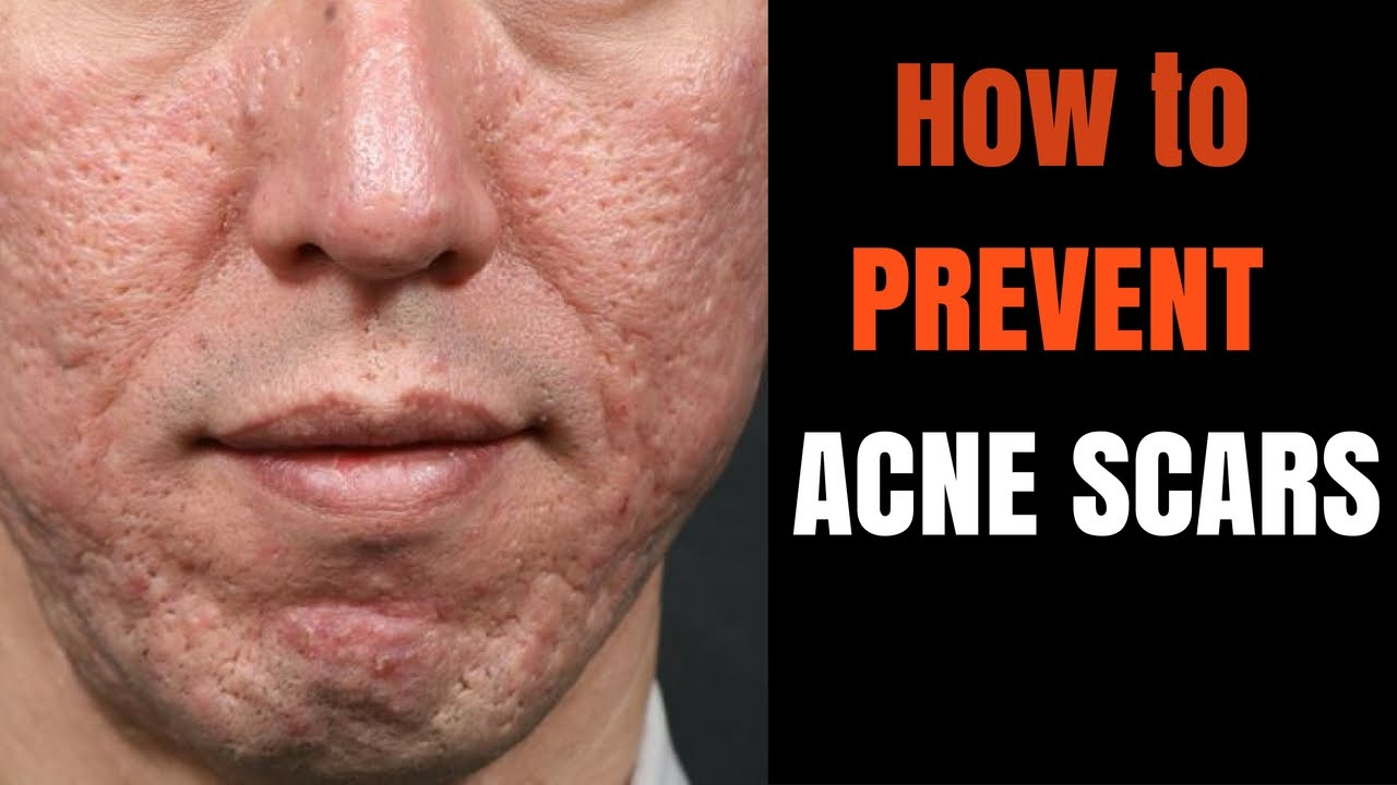 Acne Scars How To Prevent Youtube