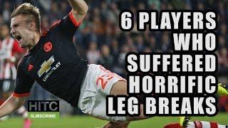 6 Players Who Suffered Horrific Leg Breaks