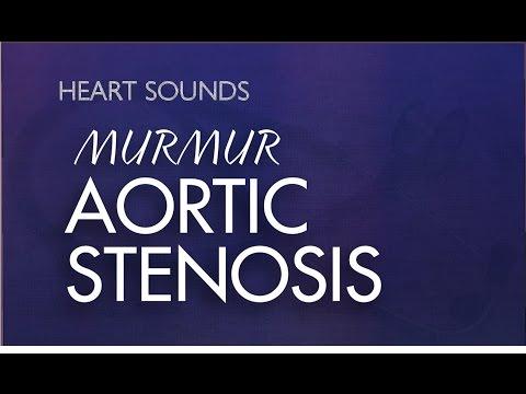 Aortic Stenosis Murmur | With Murmur Sounds Audio