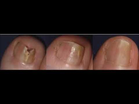 How To Use Apple Cider Japanese – Japanese Toenail Fungus Code