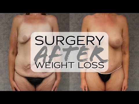After Weight Loss Transformation