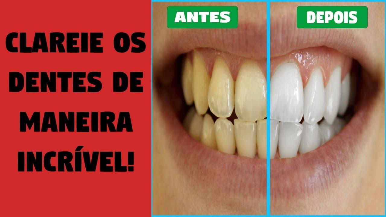 Clareamento Dental Caseiro Bicarbonato Com Limao Os Dentistas