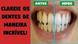 Como Clarear Os Dentes Com Bicarbonato E Limao