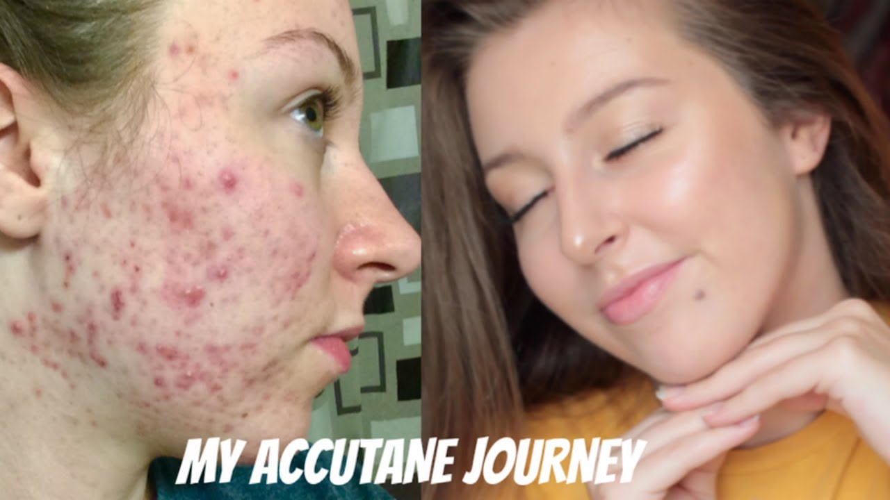 my isotretinoin accutane journey before and after photos youtube