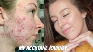 MY ISOTRETINOIN (ACCUTANE) JOURNEY + BEFORE AND AFTER PHOTOS