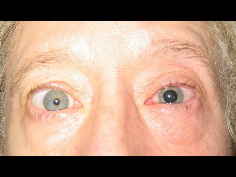 Euphorbia Plant SHOOTS Seattle Woman In EYE With POISONOUS Sap as She Gardens!!