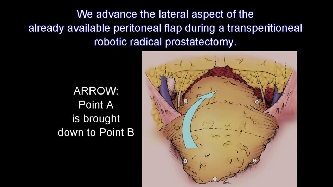 Lymphocele Prevention During Robotic Radical Prostatectomy Youtube