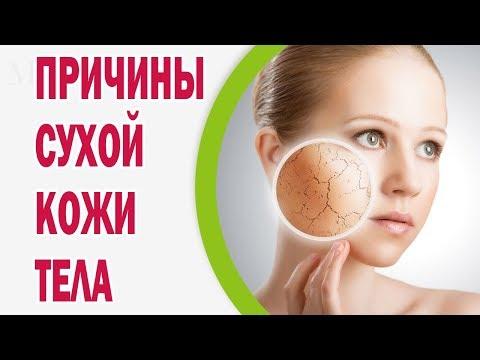 Причины сухой кожи тела