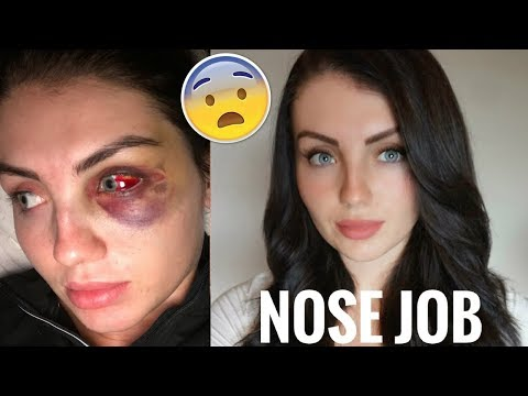 I'M GETTING A NOSE JOB | PT 1
