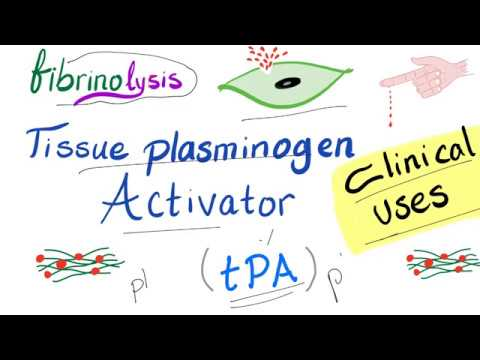 Download Clinical Uses of Tissue Plasminogen Activator (tPA)