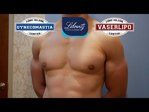 21 Y/O MALE Bilateral NIPPLE Reduction Surgery - Dr. Lebowitz, New York
