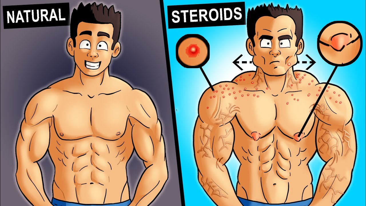 signs of steroids