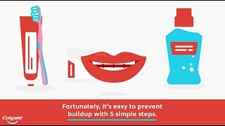 How to Remove and Prevent Plaque on Teeth | Colgate®