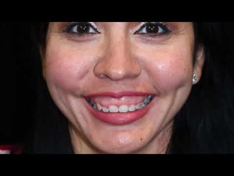 A gum-lift, Gumtuk, and Upper 10 veneers done by @smiletexas_houston    3- Visit Smile Makeover
