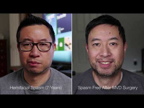 Hemifacial Spasm Symptoms And Cure - Before And After Microvascular Decompression - MVD Surgery