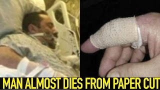 Man Almost DIES From Paper Cut