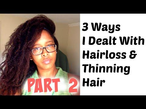 Hair Loss (Part 2) - Amalgam Mercury Filling Removal, Detoxing & Using Zinc