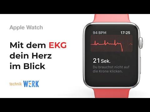 Apple Watch Series 4 EKG-Funktion: Endlich in Deutschland; alle Infos & Demo