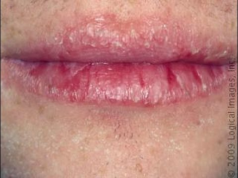 Why Your Lips Are Chapped (and the way to Enable Them To)