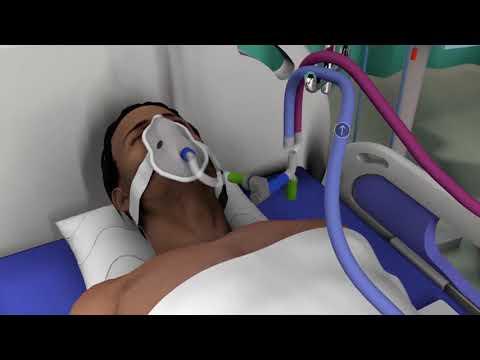Here's how ventilators