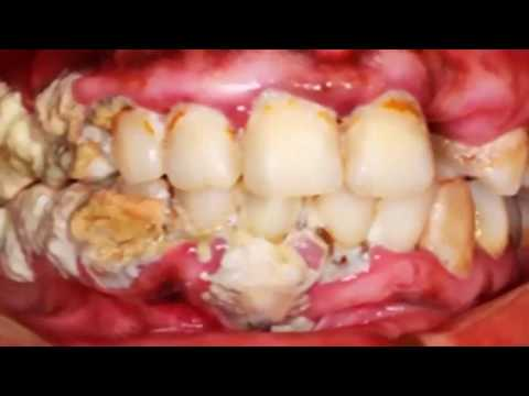extreme dental plaque removal what is plaque youtube. Black Bedroom Furniture Sets. Home Design Ideas