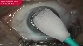 Лазерная коррекция зрения. Операция