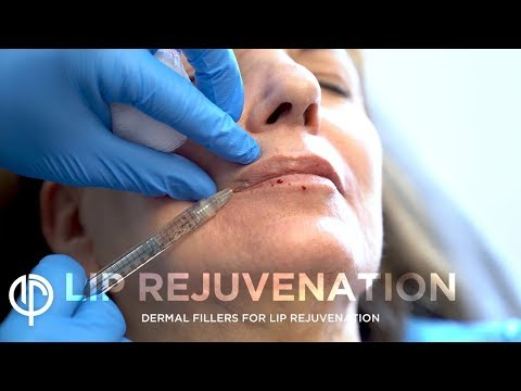 Lip Augmentation Surgery | Juvederm Lip Enhancement | Juvederm Lip Fillers | Dr Jason Emer