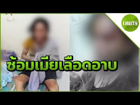 เมาซ้อมเมียเลือดอาบฝืนป้อนนมลูกเล็ก | 19-04-62 | ข่าวเที่ยงไทยรัฐ