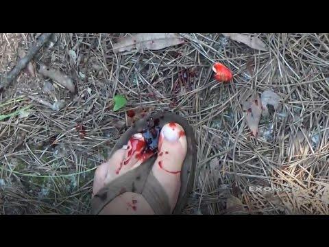 I just shot myself! Fast draw Glock 9mm