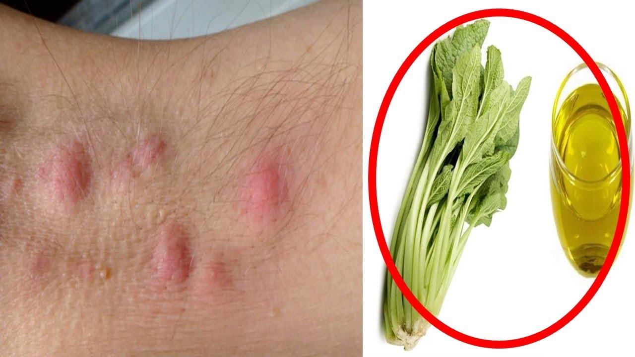 El peeling contra el acné las revocaciones