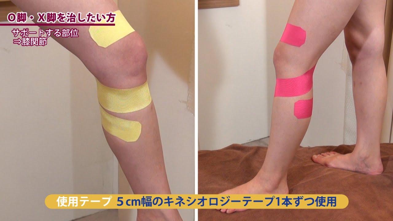 キネシオロジー貼り方講座  О脚・X脚を治したい方