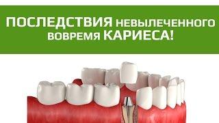 видео Металлокерамические коронки (протезы) расшатывают зубы? Немецкий Имплантологический Центр