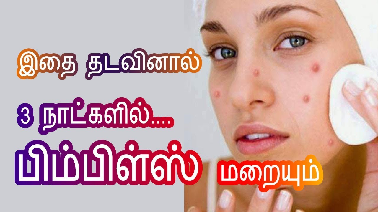 Pimple Removal Home Remedies In Tamil Beauty Tips To Remove Pimples At