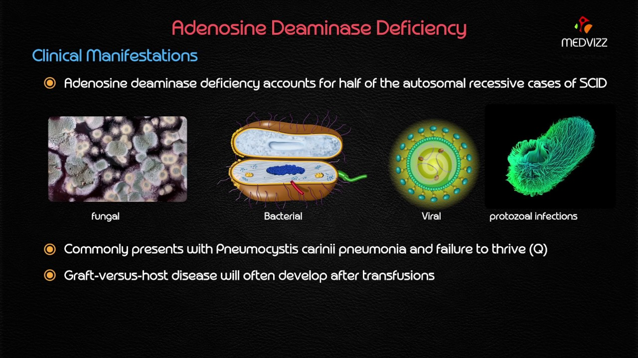 adenosine deaminase ada deficiency youtube